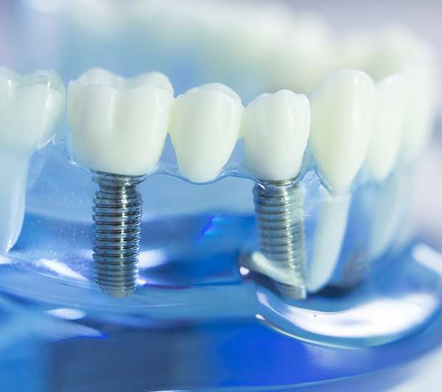 Want to visit a dental clinic for dental implants? Learn these aspects